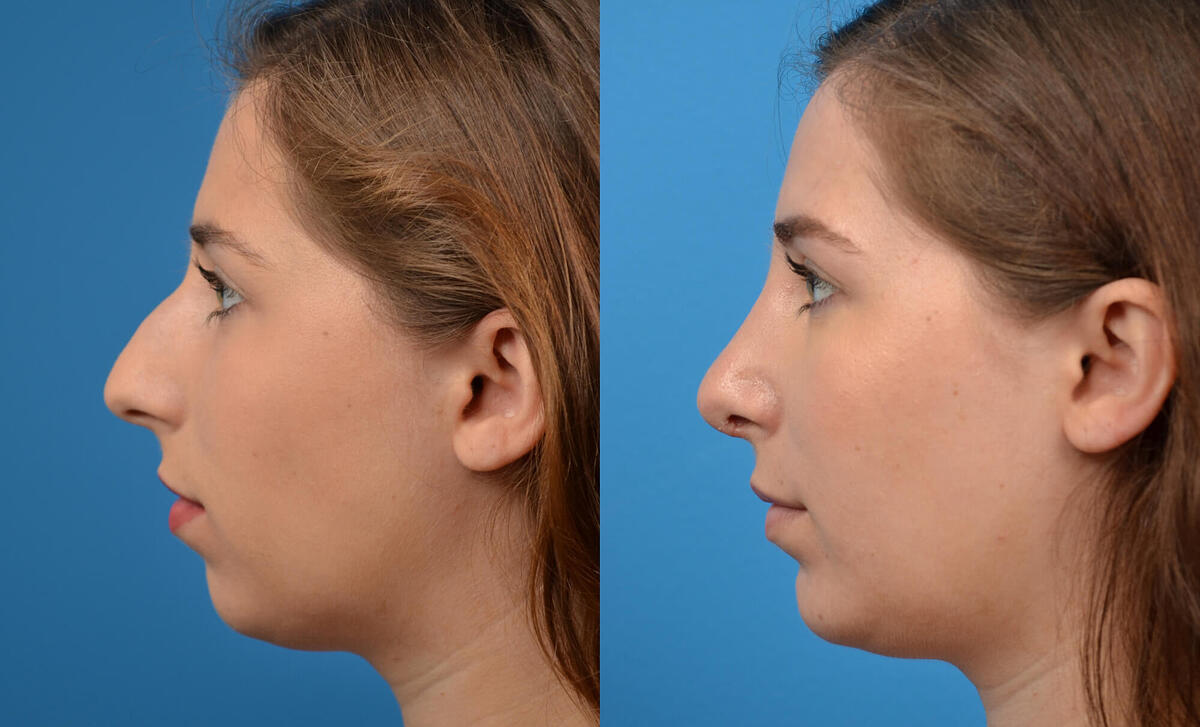 before and after pictures in Melbourne, FL, Patient 11897