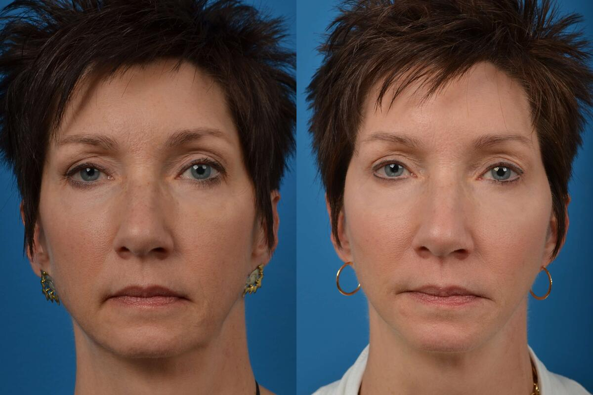 before and after pictures in Melbourne, FL, Patient 12563