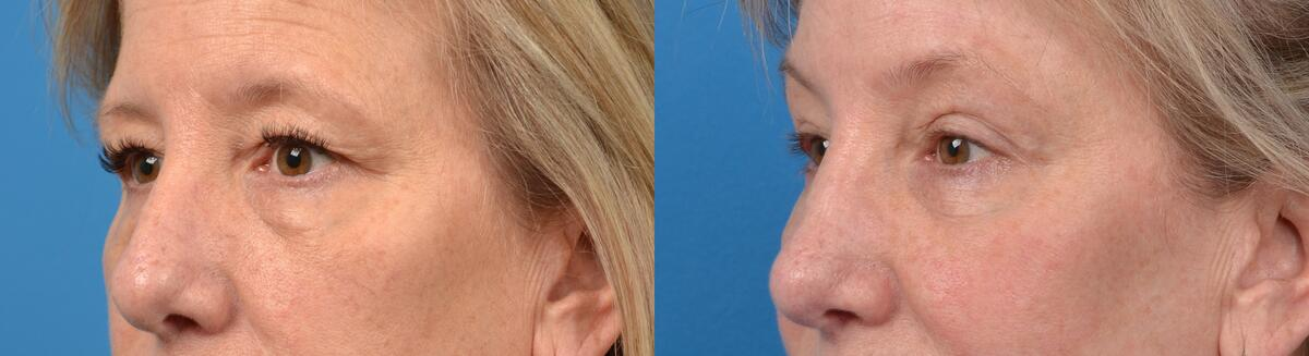 before and after pictures in Melbourne, FL, Patient 14019