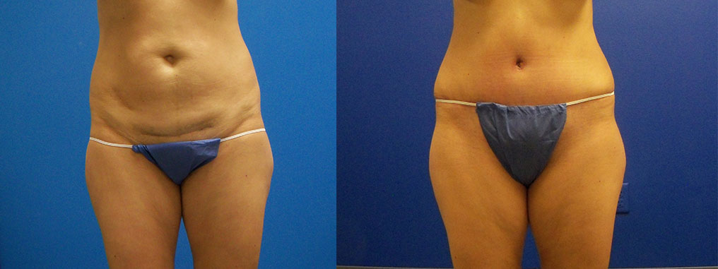 before and after pictures in Melbourne, FL, Patient 14243