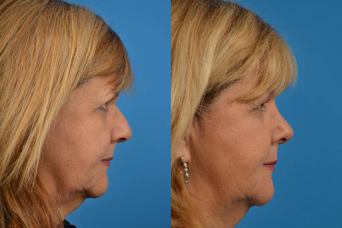 before and after pictures in Melbourne, FL, Patient 15137