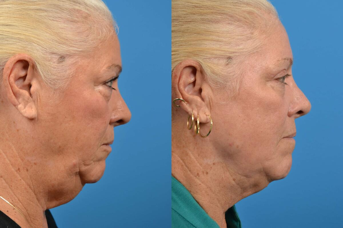 Neck Lift before and after pictures in Melbourne, FL, Patient 15801
