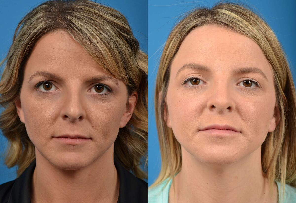 Rhinoplasty before and after pictures in Melbourne, FL, Patient 16524
