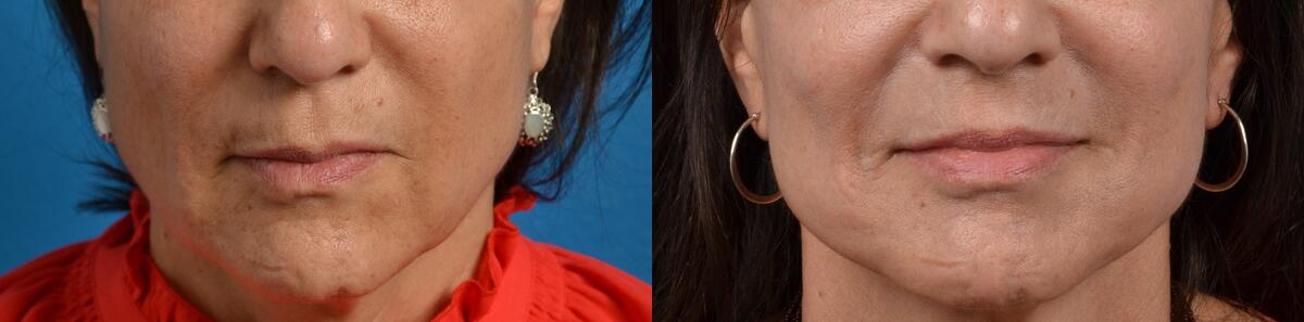 before and after pictures in Melbourne, FL, Patient 2748