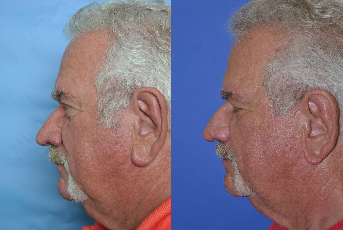 before and after pictures in Melbourne, FL, Patient 27706
