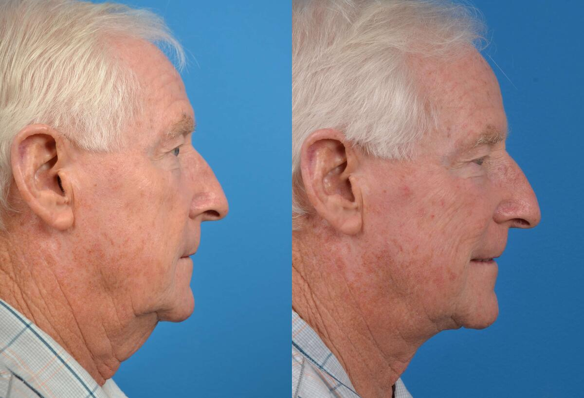 before and after pictures in Melbourne, FL, Patient 28101