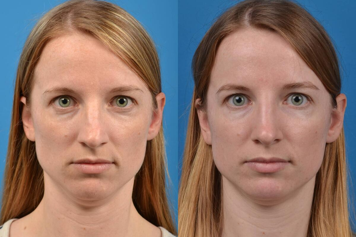 Rhinoplasty before and after pictures in Melbourne, FL, Patient 28197