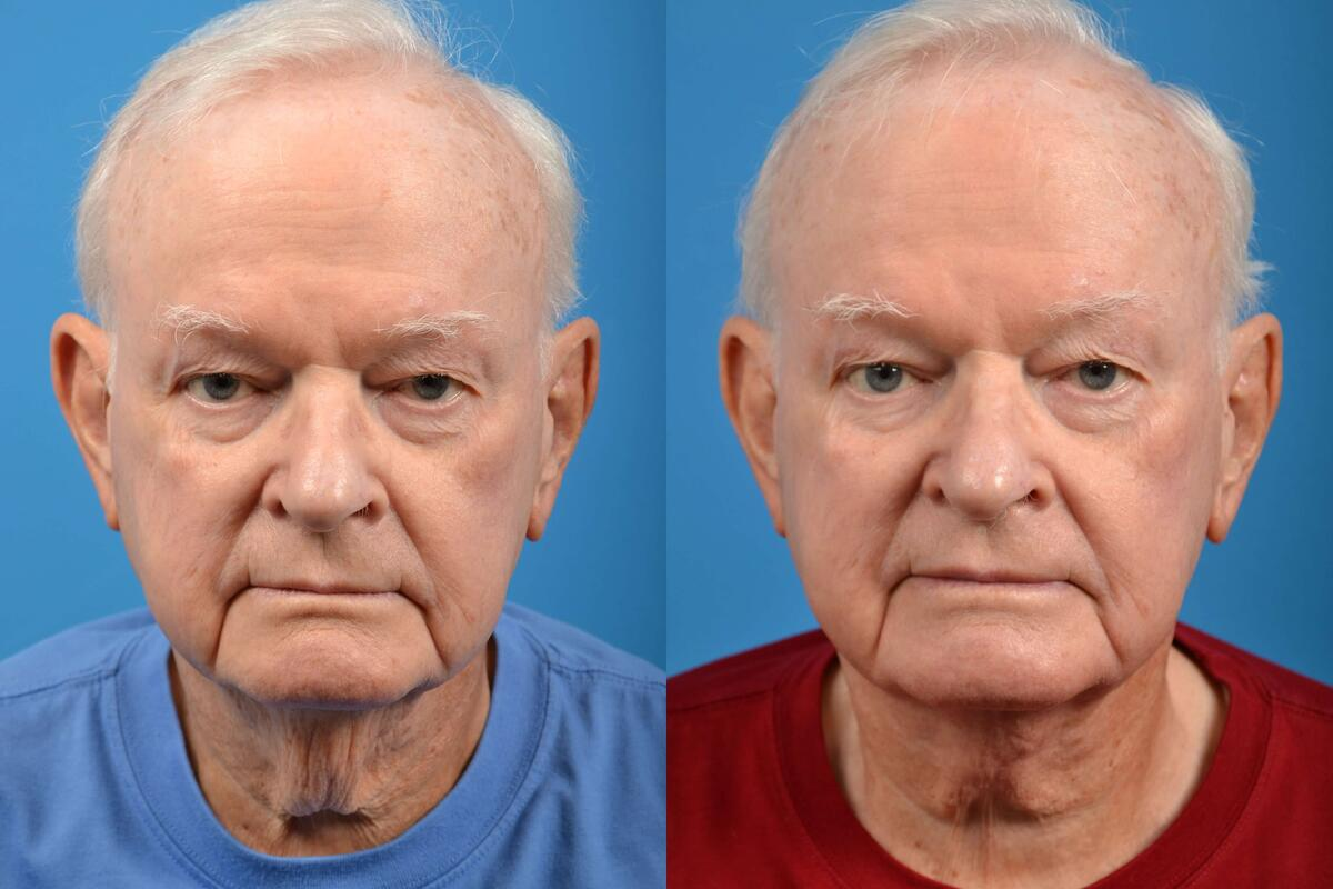 before and after pictures in Melbourne, FL, Patient 28316