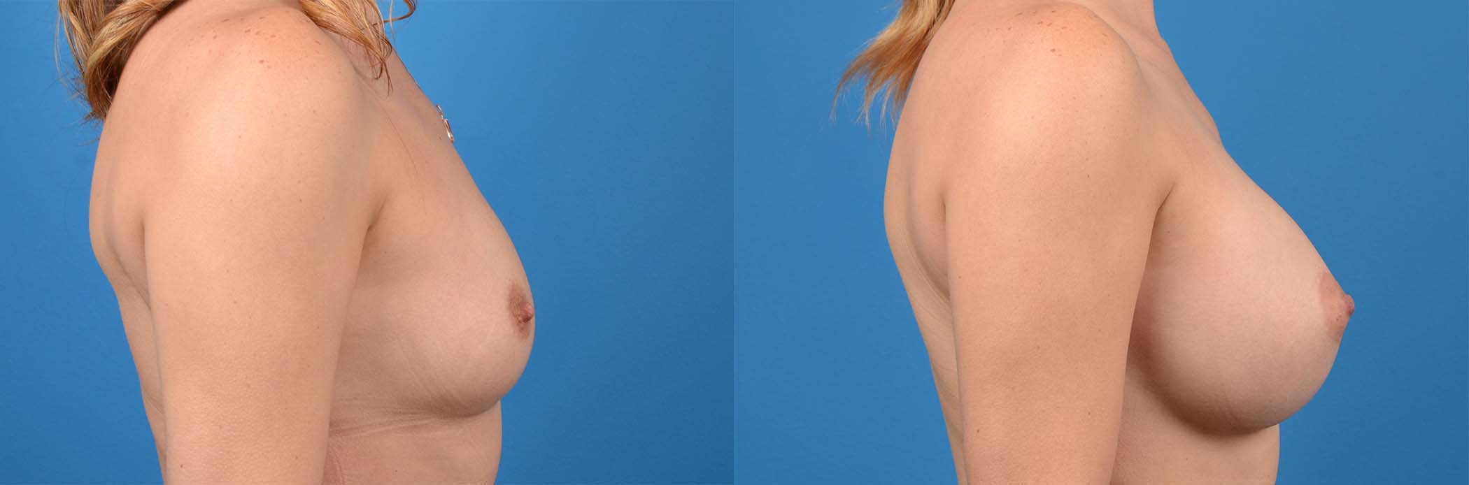 before and after pictures in Melbourne, FL, Patient 29135
