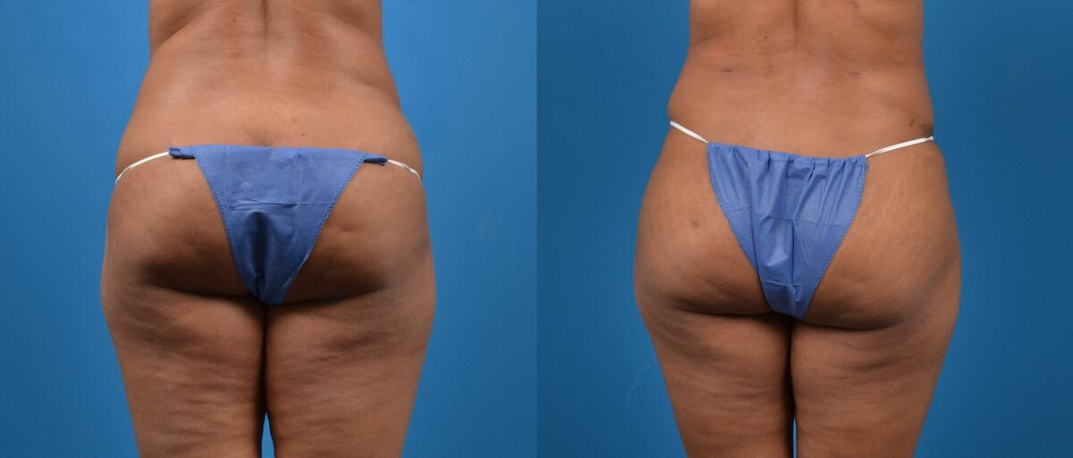 Liponique Body Contouring before and after pictures in Melbourne, FL, Patient 29285