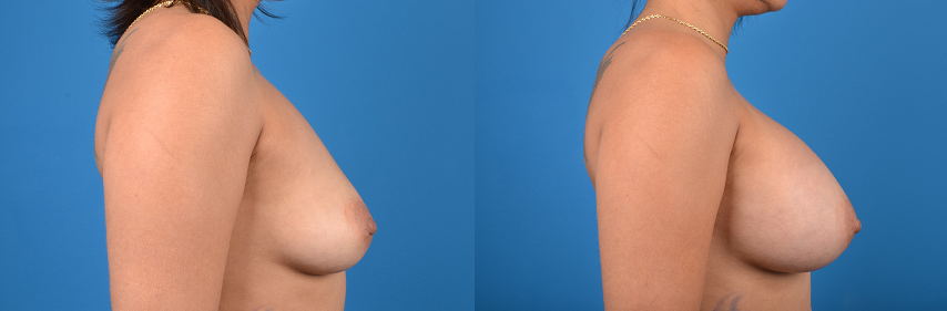 Breast Augmentation before and after pictures in Melbourne, FL, Patient 29415