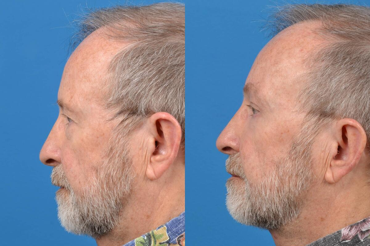 before and after pictures in Melbourne, FL, Patient 29636