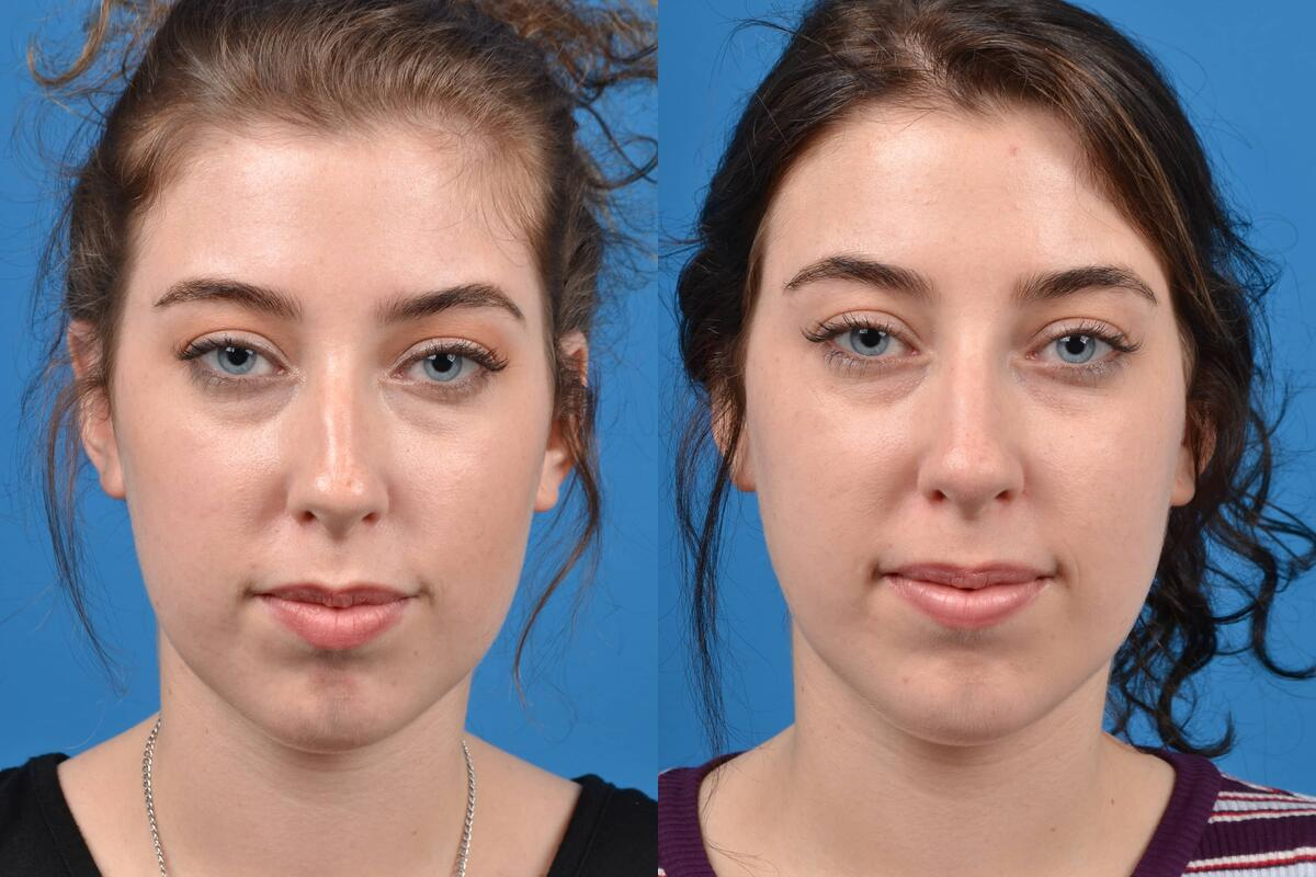 Liquid Rhinoplasty before and after pictures in Melbourne, FL, Patient 29711