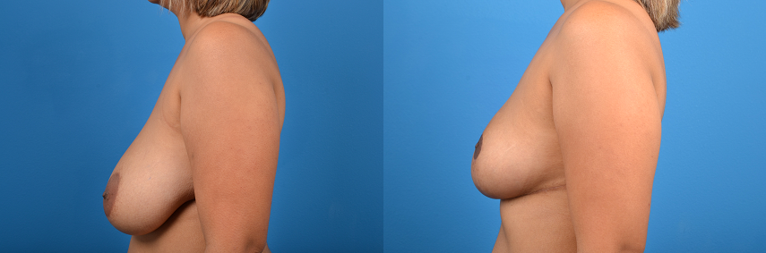 Breast Reduction before and after pictures in Melbourne, FL, Patient 29830