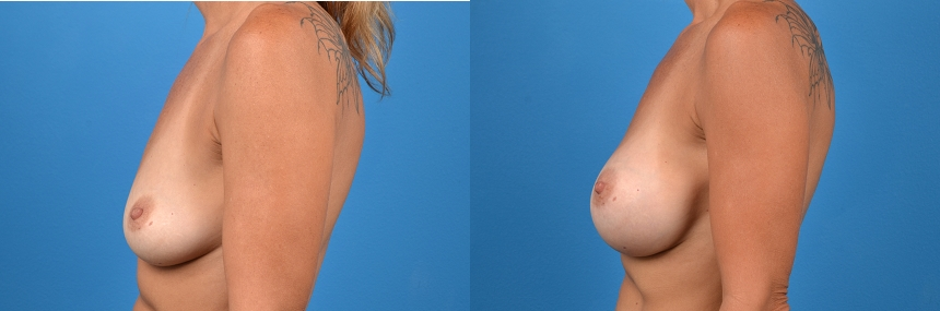 Breast Augmentation before and after pictures in Melbourne, FL, Patient 30122