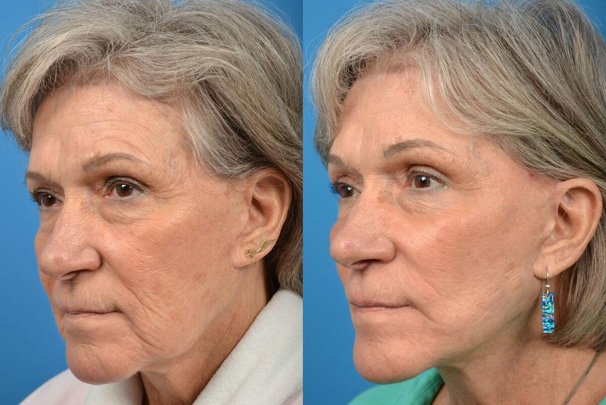 Facelift before and after pictures in Melbourne, FL, Patient 5010