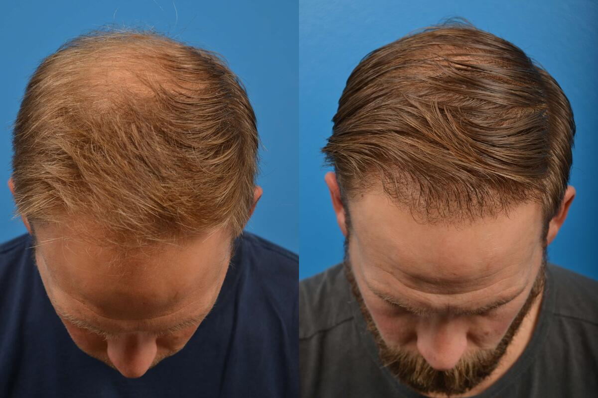 before and after pictures in Melbourne, FL, Patient 6388
