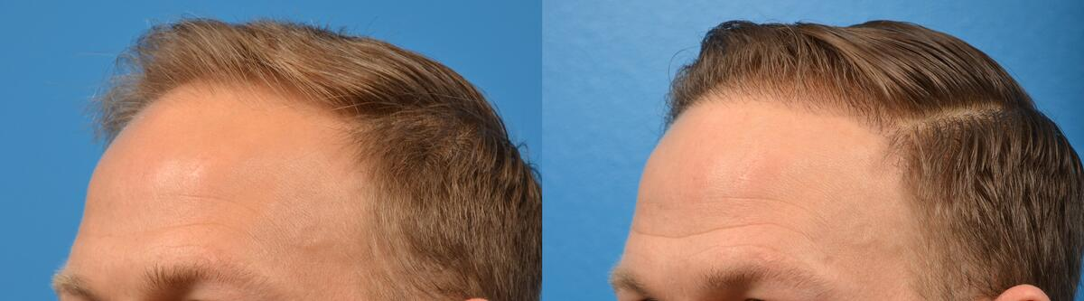 Hair Restoration before and after pictures in Melbourne, FL, Patient 6388