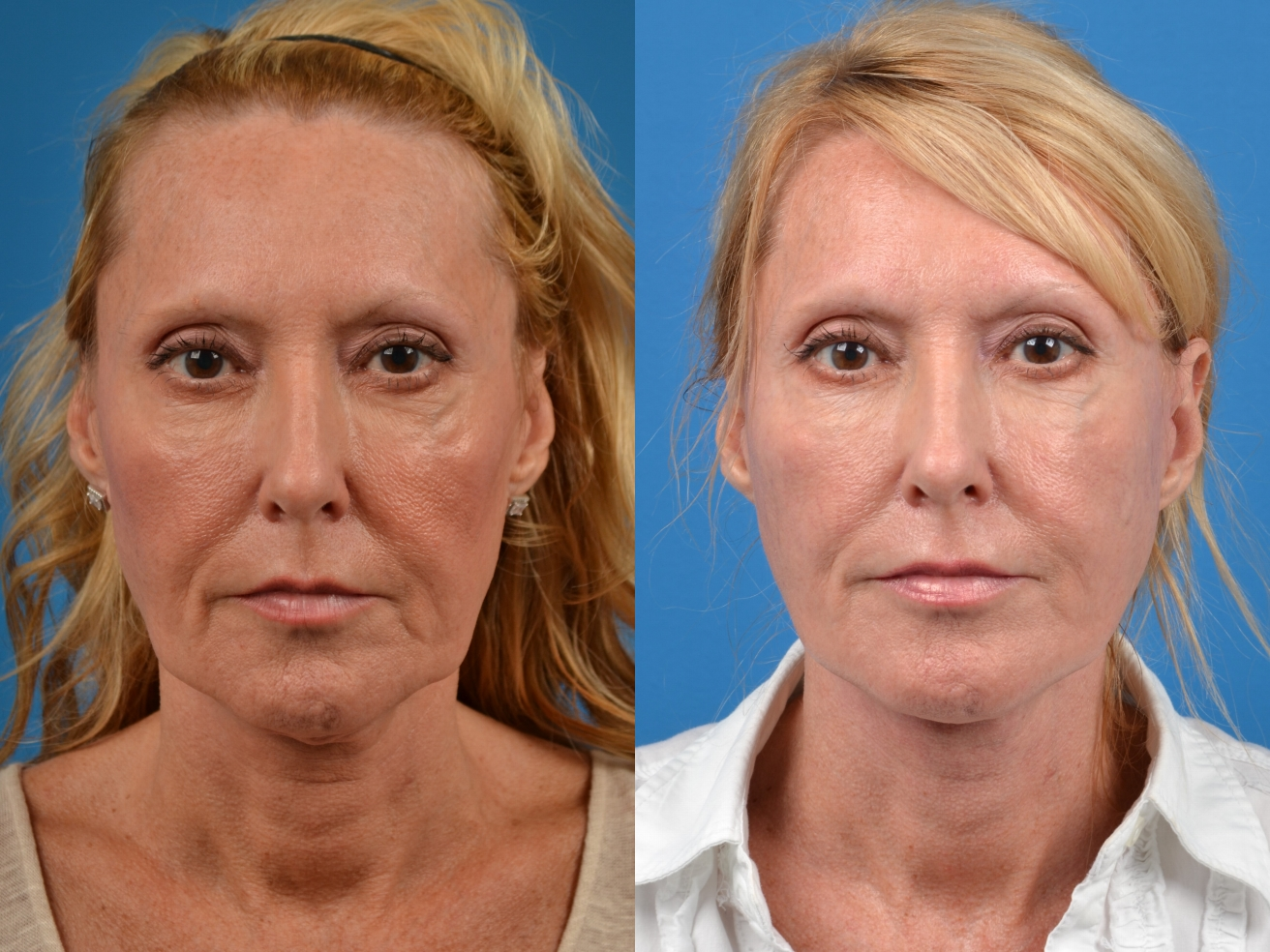 before and after pictures in Melbourne, FL, Patient 64