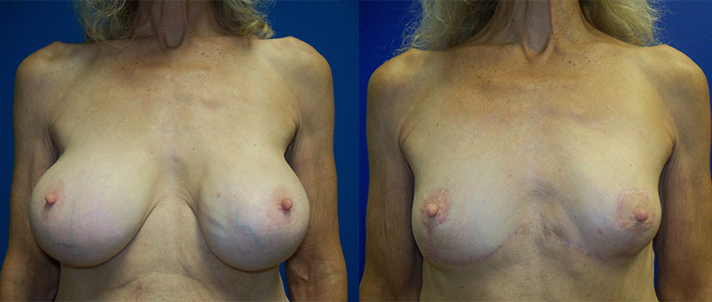 Breast-Implant-Removal-Benefits-before-after