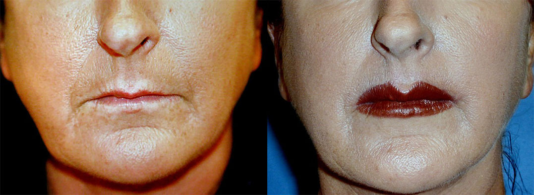 before and after pictures in Melbourne, FL, Patient 11112