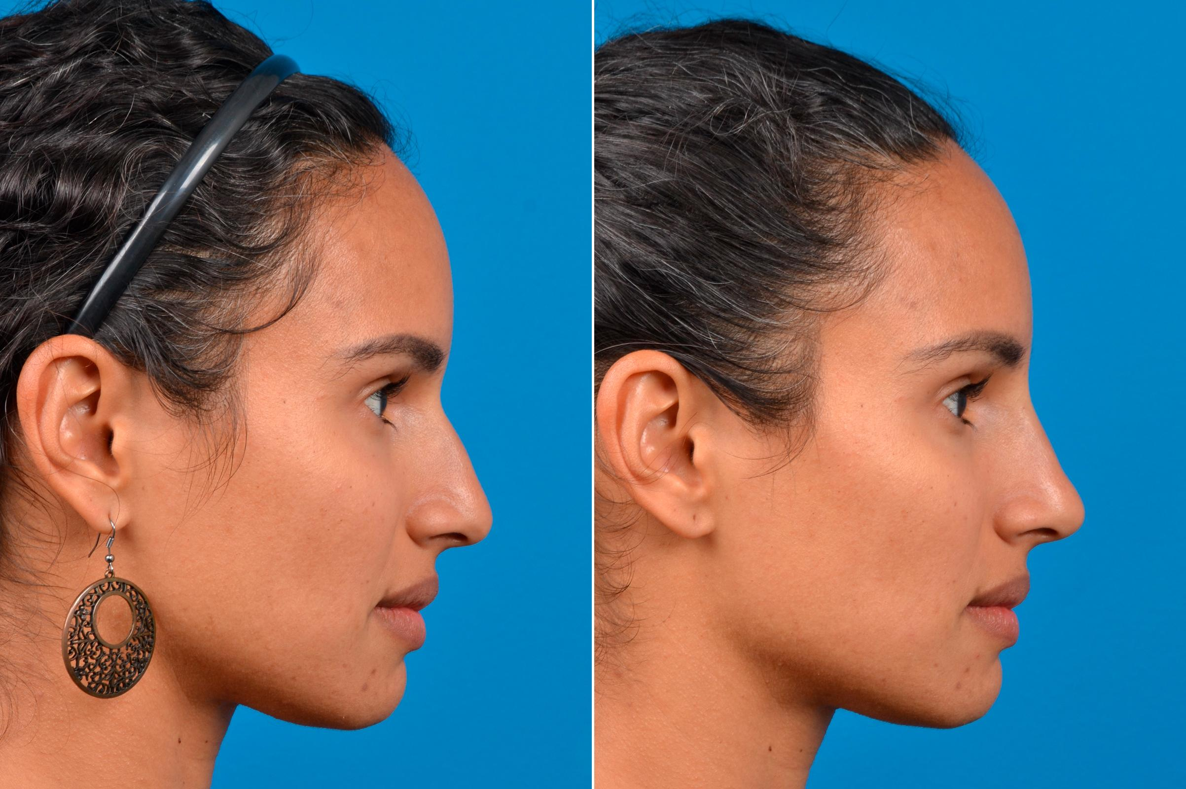 liquid-rhinoplasty-before-after-6