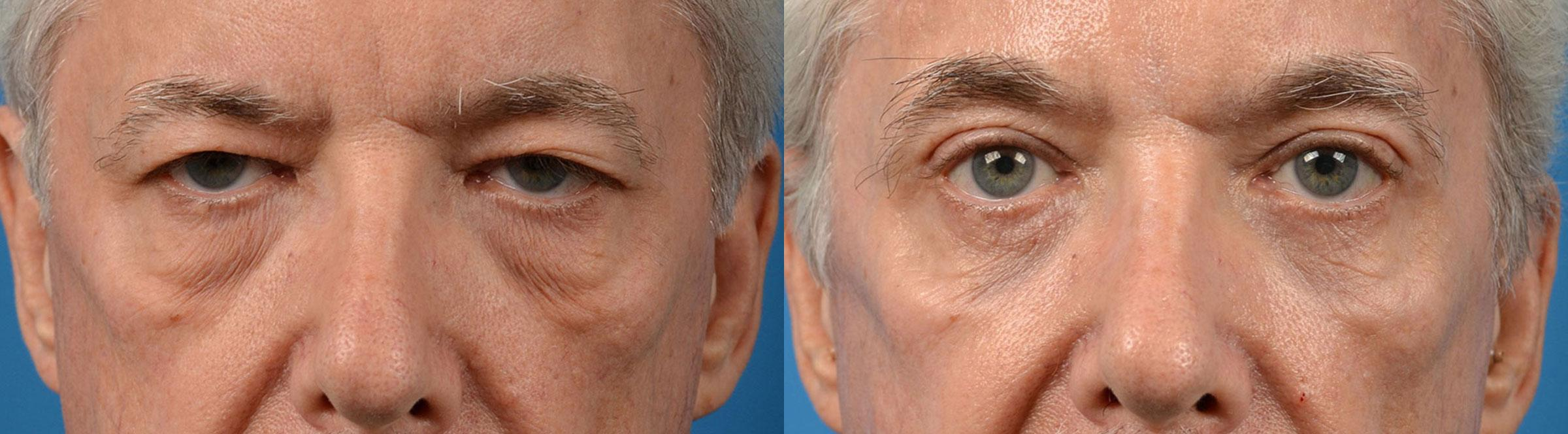 patient-58044-eyelid-surgery-before-after-10