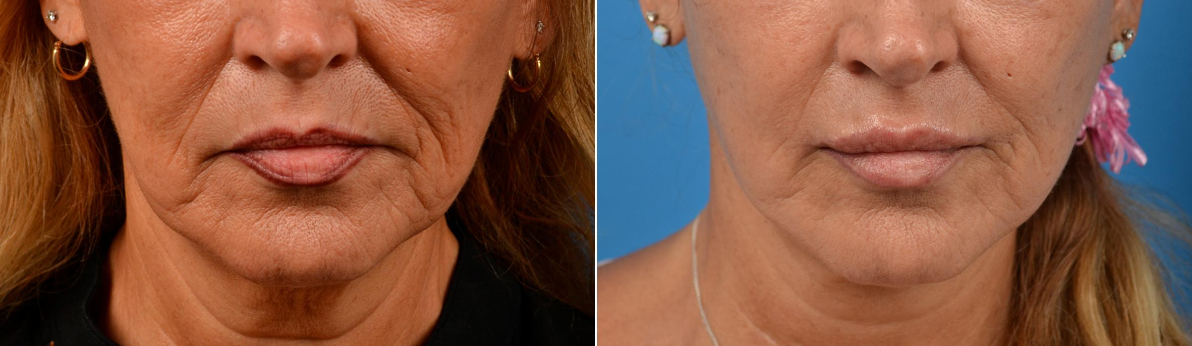 lip-enhancement-before-after