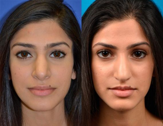 before and after pictures in Melbourne, FL, Rhinoplasty in Melbourne, FL