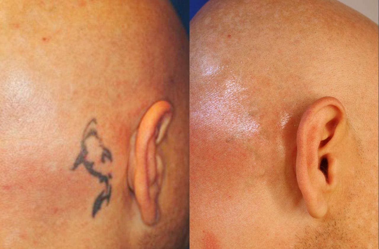 patient-54004-picosure-tattoo-removal-before-after