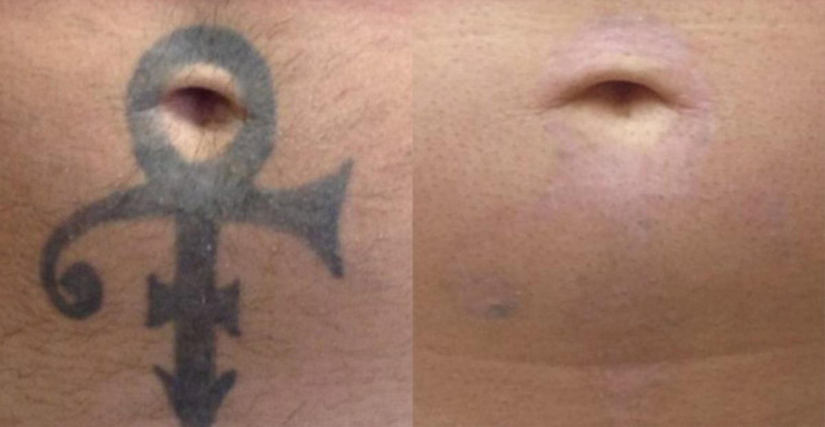 Before and after pictures in Melbourne, FL, PicoSure Tattoo Removal in Melbourne, FL