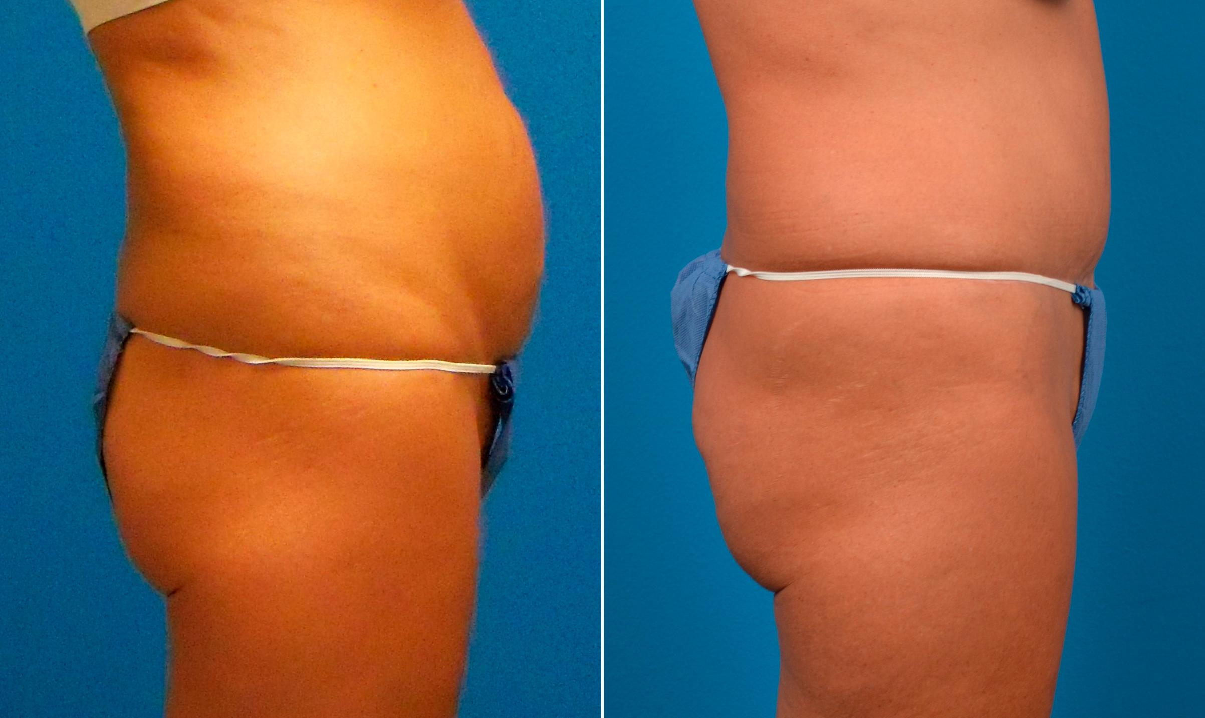 before and after pictures in Melbourne, FL, Body Contouring After Weight Loss in Melbourne, FL