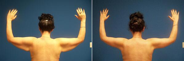 patient-57488-arm-lift-before-after-2-1200x399
