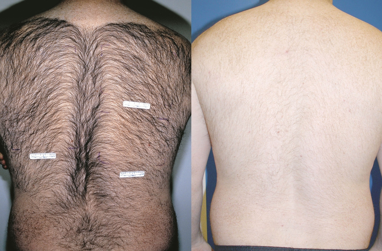 Laser Hair Removal before and after pictures in Melbourne, FL, Patient 2