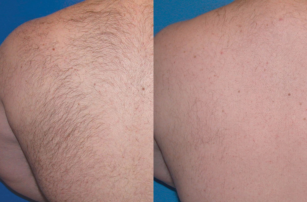 Laser Hair Removal before and after pictures in Melbourne, FL, Patient 4