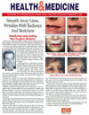 Smooth Away Lines, Wrinkles with Radiance And Restylane
