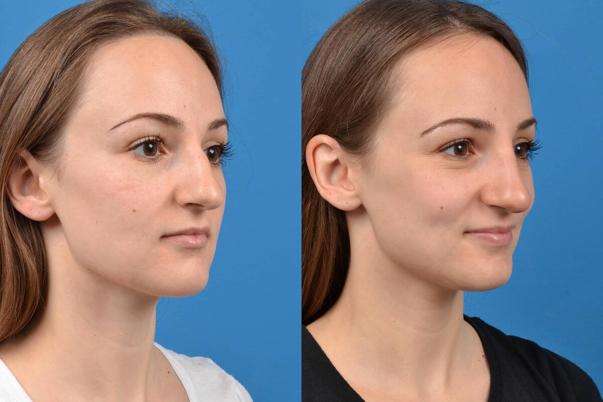 Liquid Rhinoplasty before and after pictures in Melbourne, FL, Patient 30445