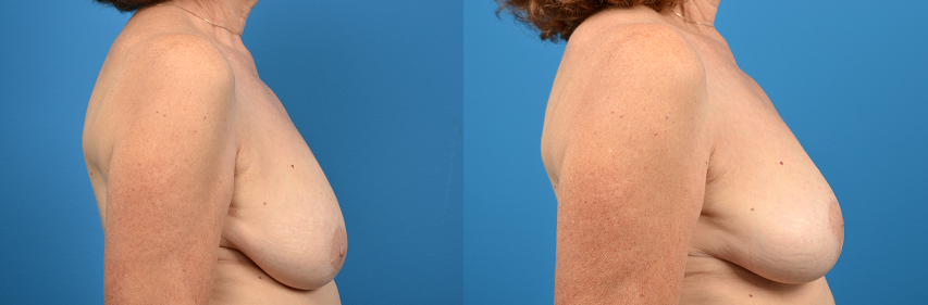 before and after pictures in Melbourne, FL, Patient 16149
