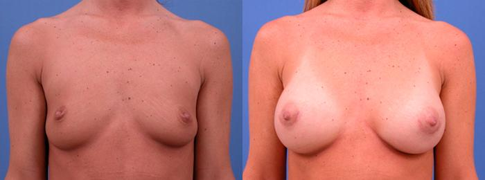 before and after pictures in Melbourne, FL, Patient 25968