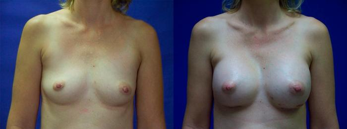 before and after pictures in Melbourne, FL, Patient 26058