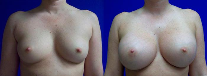 before and after pictures in Melbourne, FL, Patient 26063