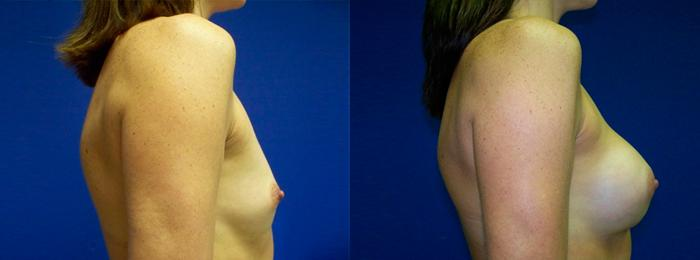 before and after pictures in Melbourne, FL, Patient 26068