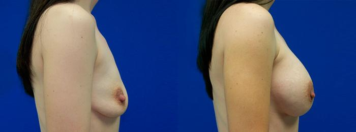 before and after pictures in Melbourne, FL, Patient 26088