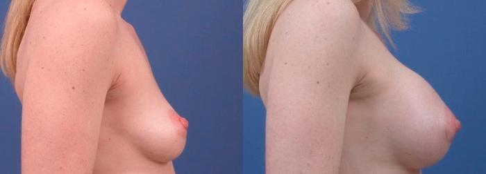 before and after pictures in Melbourne, FL, Patient 26108
