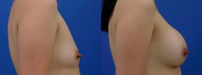 before and after pictures in Melbourne, FL, Patient 26138