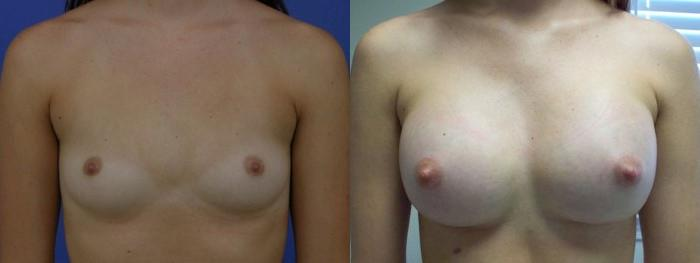 before and after pictures in Melbourne, FL, Patient 26143