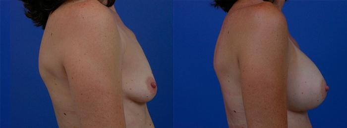 before and after pictures in Melbourne, FL, Patient 26414