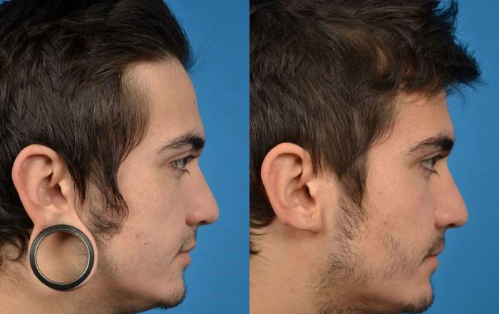 before and after pictures in Melbourne, FL, Patient 26823