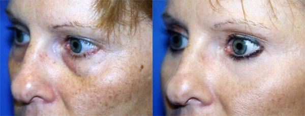 before and after pictures in Melbourne, FL, Patient 26894