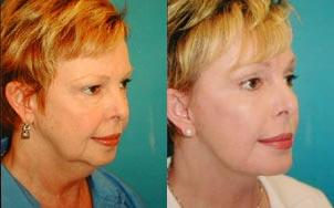 before and after pictures in Melbourne, FL, Patient 27793